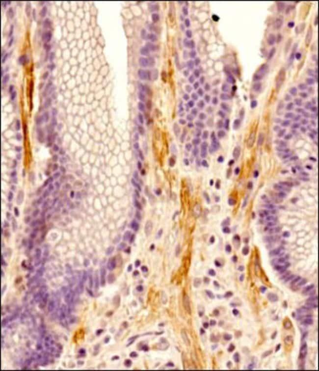 ADAM28 Rabbit anti-Human, Polyclonal, Novus Biologicals 0.1mg