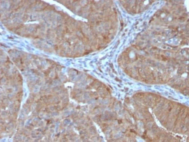 AKR1B1, Mouse anti-Human, Clone: CPTC-AKR1B1-2, Novus Biologicals:Antibodies:Primary