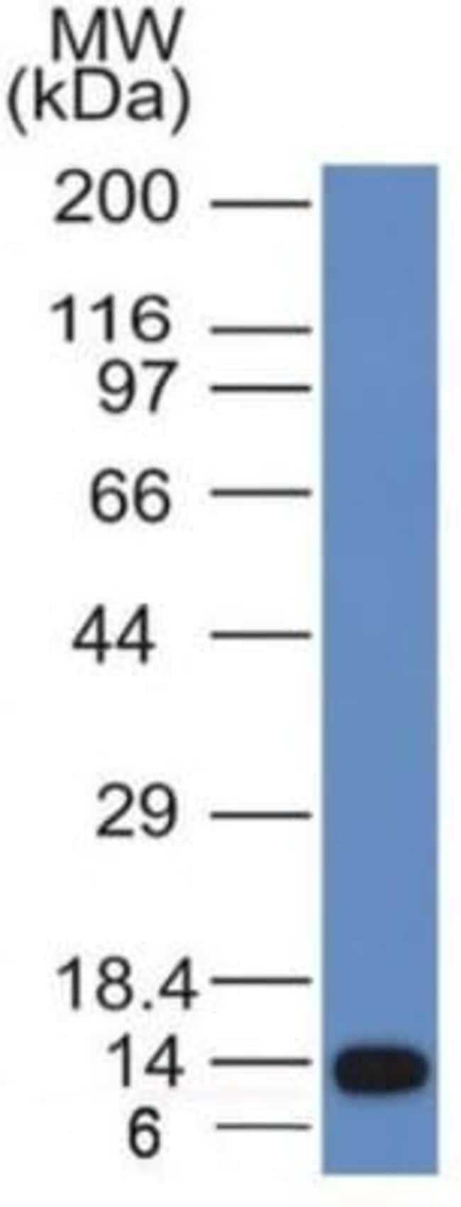 ALK/CD246 Mouse anti-Human, Clone: ALK/1031, Novus Biologicals:Antibodies:Primary