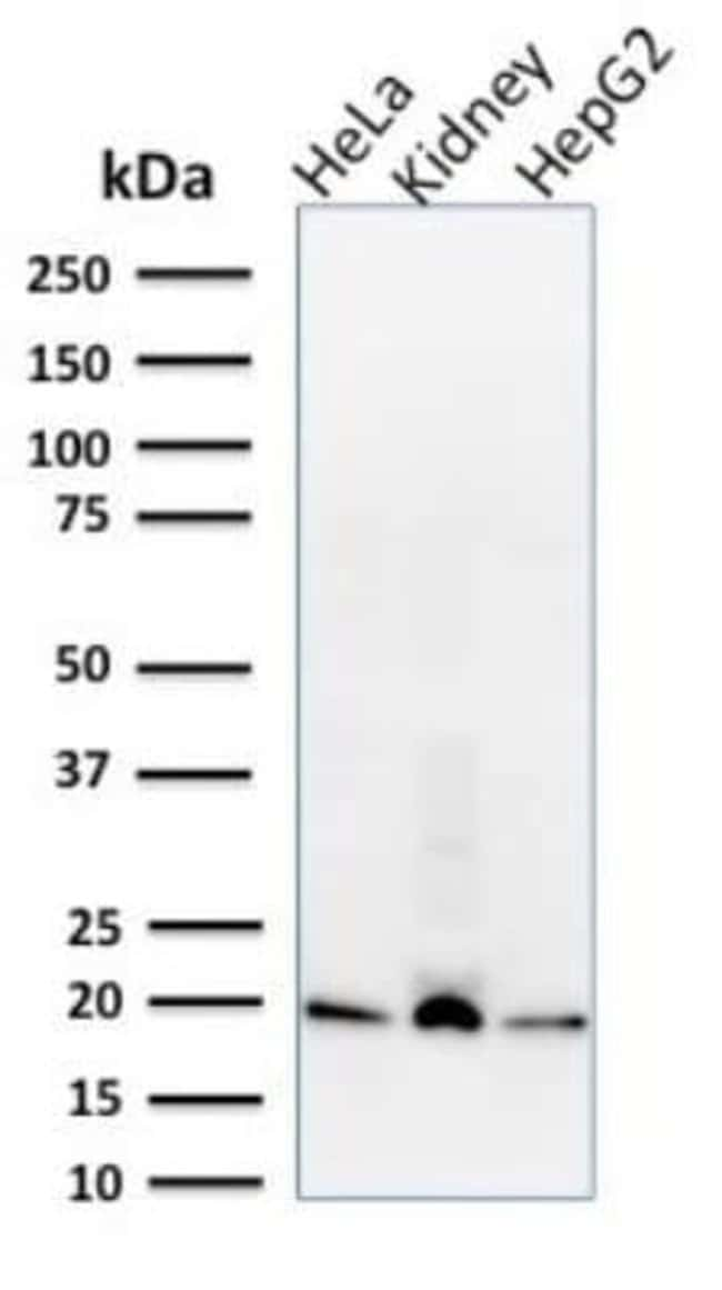 ARF1 Mouse anti-Human, Mouse, Rat, Clone: 1A9/5, Novus Biologicals:Antibodies:Primary
