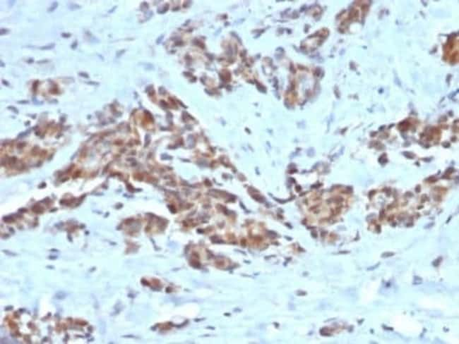 ARF1 Mouse anti-Human, Mouse, Rat, Clone: ARF1/2117, Novus Biologicals:Antibodies:Primary