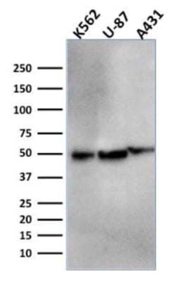 ATG5 Mouse anti-Human, Clone: ATG5/2553, Novus Biologicals:Antibodies:Primary