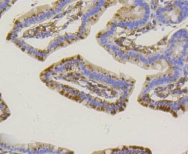 AlkalinePhosphatase,TissueNon-Specific Rabbit anti-Human, Clone: SA40-00,
