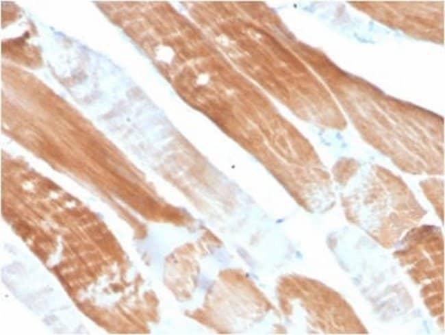 Alpha Actinin 2 Mouse anti-Human, Clone: ACTN2/3291, Novus Biologicals:Antibodies:Primary