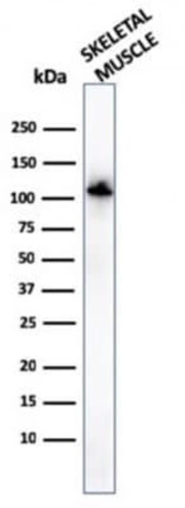 Alpha Actinin 2 Mouse anti-Human, Clone: ACTN2/3294, Novus Biologicals:Antibodies:Primary
