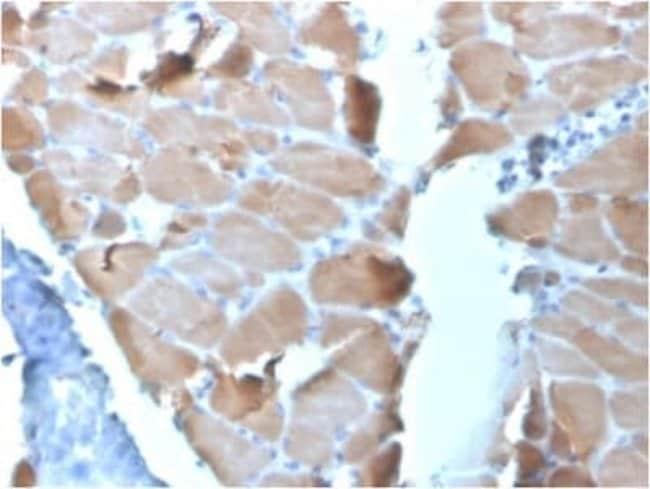 Alpha Actinin 2 Mouse anti-Human, Clone: ACTN2/3295, Novus Biologicals:Antibodies:Primary