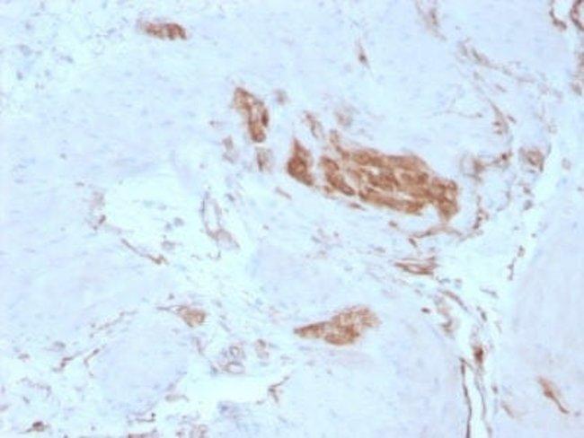 Alpha Fodrin Mouse anti-Human, Clone: SPTAN1/3351, Novus Biologicals:Antibodies:Primary