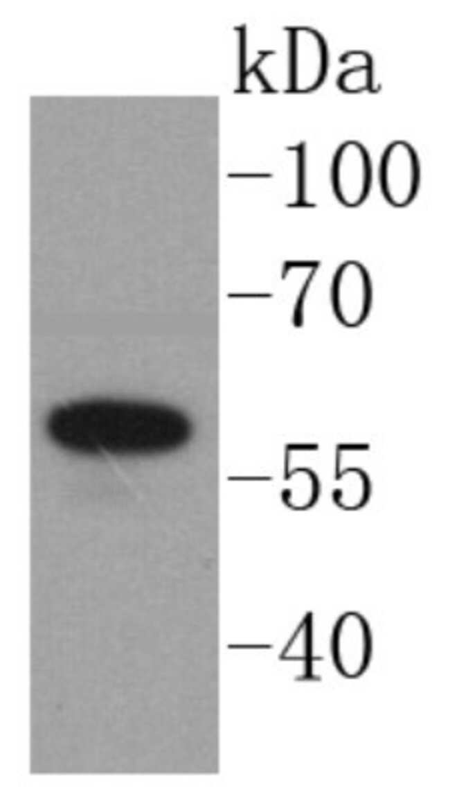 Angiopoietin-1 Rabbit anti-Human, Clone: SN67-02, Novus Biologicals 100μL:Antibodies