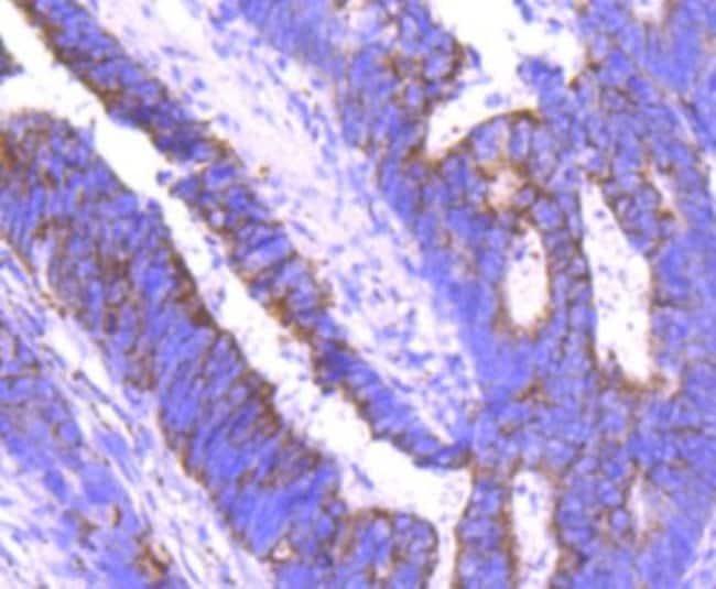 Angiopoietin-2 Rabbit anti-Human, Clone: JM71-34, Novus Biologicals 100μL:Antibodies