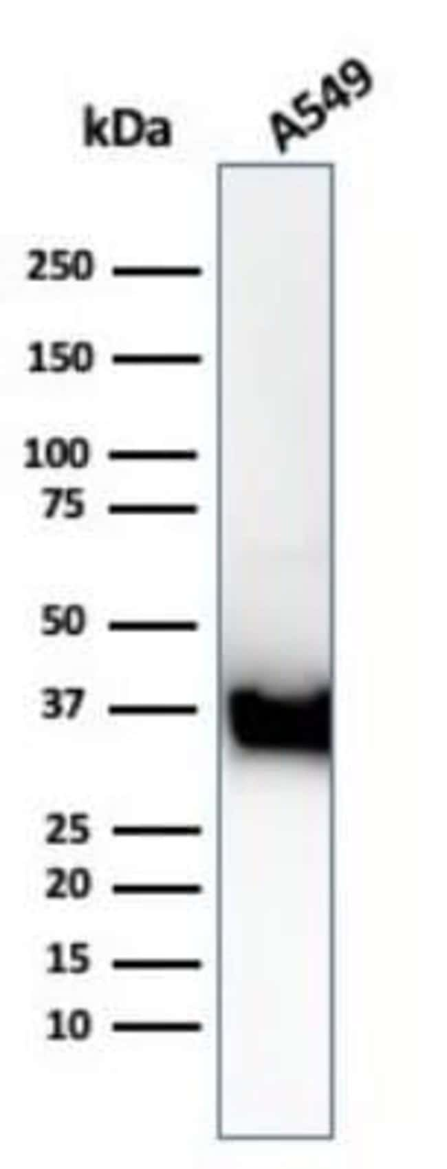 Annexin A1 Rabbit anti-Human, Mouse, Clone: ANXA1/3869R, Novus Biologicals:Antibodies:Primary
