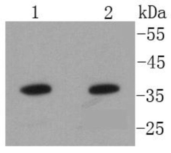 AnnexinA10 Rabbit anti-Human, Clone: SC06-02, Novus Biologicals 100µL