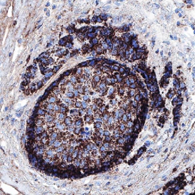 B7-H4, Mouse anti-Human, Clone: 973816R, R:Antibodies:Primary Antibodies