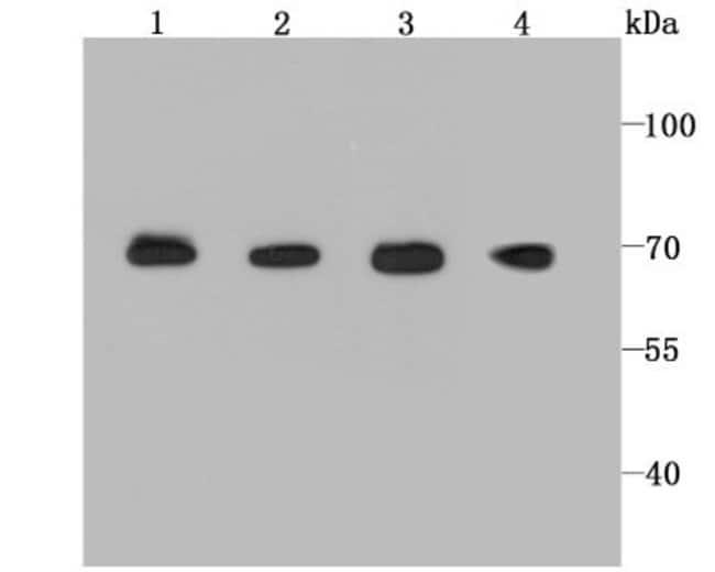 BMAL1 Rabbit anti-Human, Clone: JM17-34, Novus Biologicals 100μL