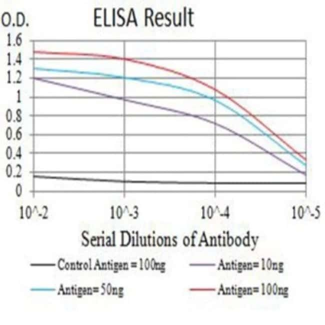 CCR1 Mouse anti-Human, Clone: 8E10G6, Novus Biologicals 0.1 ml; Unconjugated