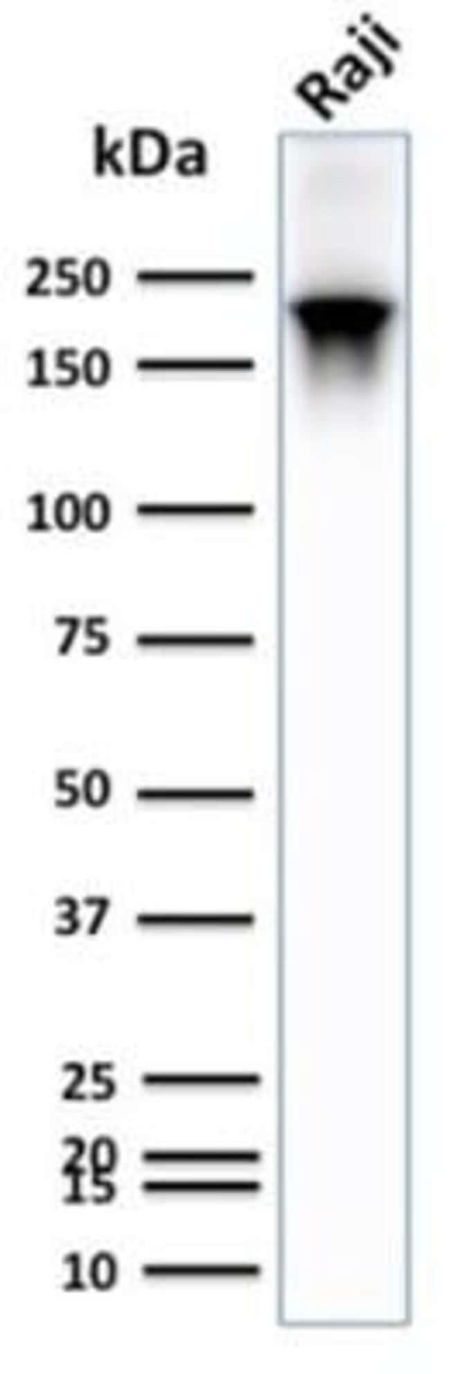 CD45RB Rabbit anti-Human, Clone: PTPRC/2877R, Novus Biologicals:Antibodies:Primary