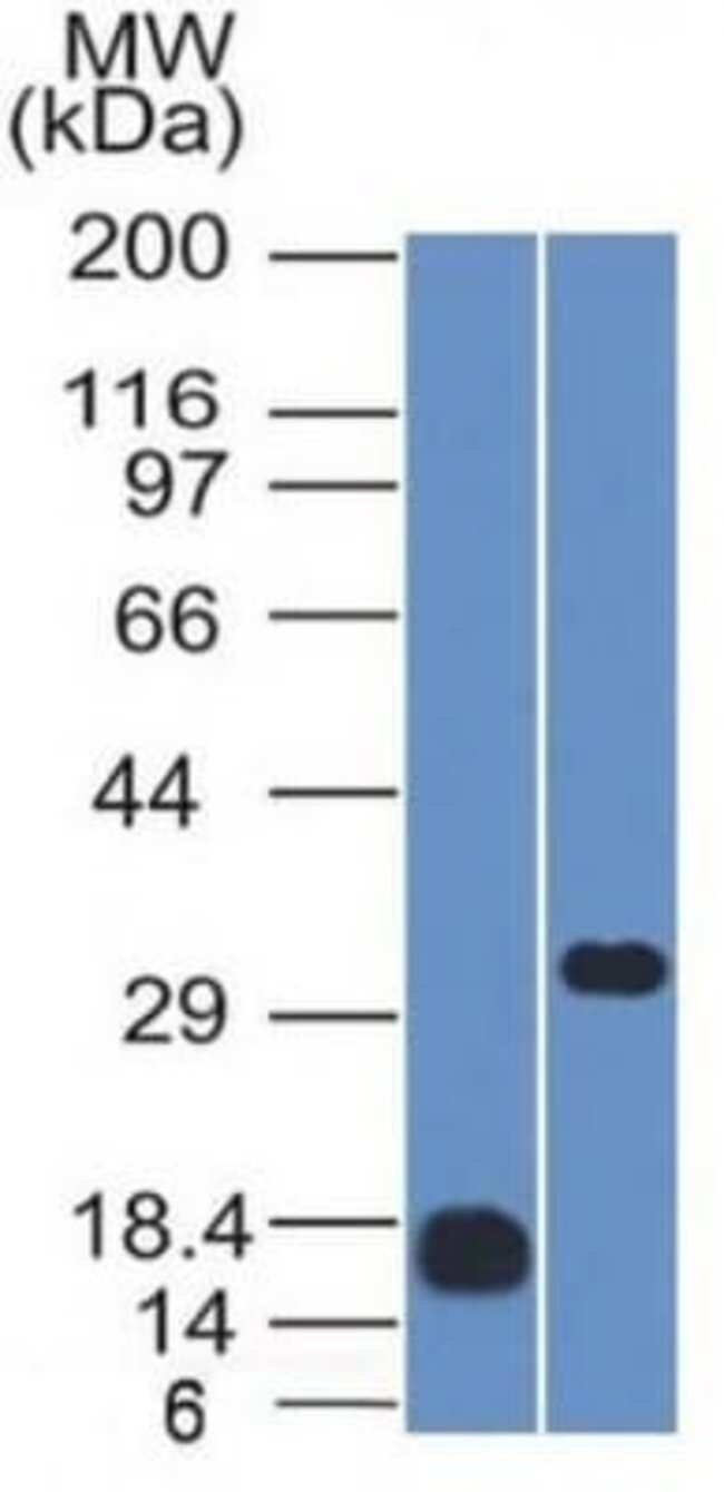 CD79B Mouse anti-Human, Clone: IGB/1843, Novus Biologicals:Antibodies:Primary