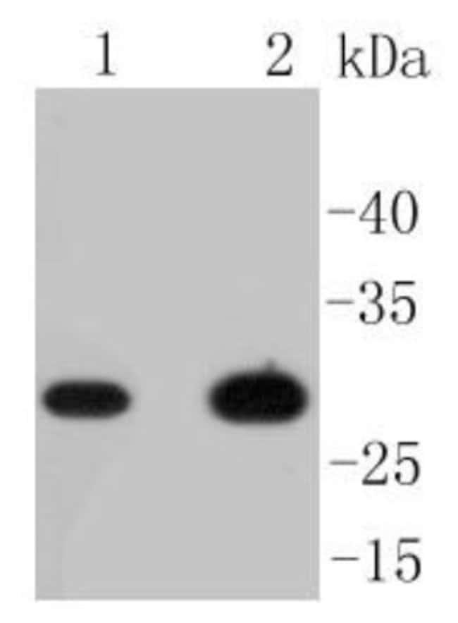 CD8 Rabbit anti-Human, Clone: SI18-01, Novus Biologicals 100μL:Antibodies