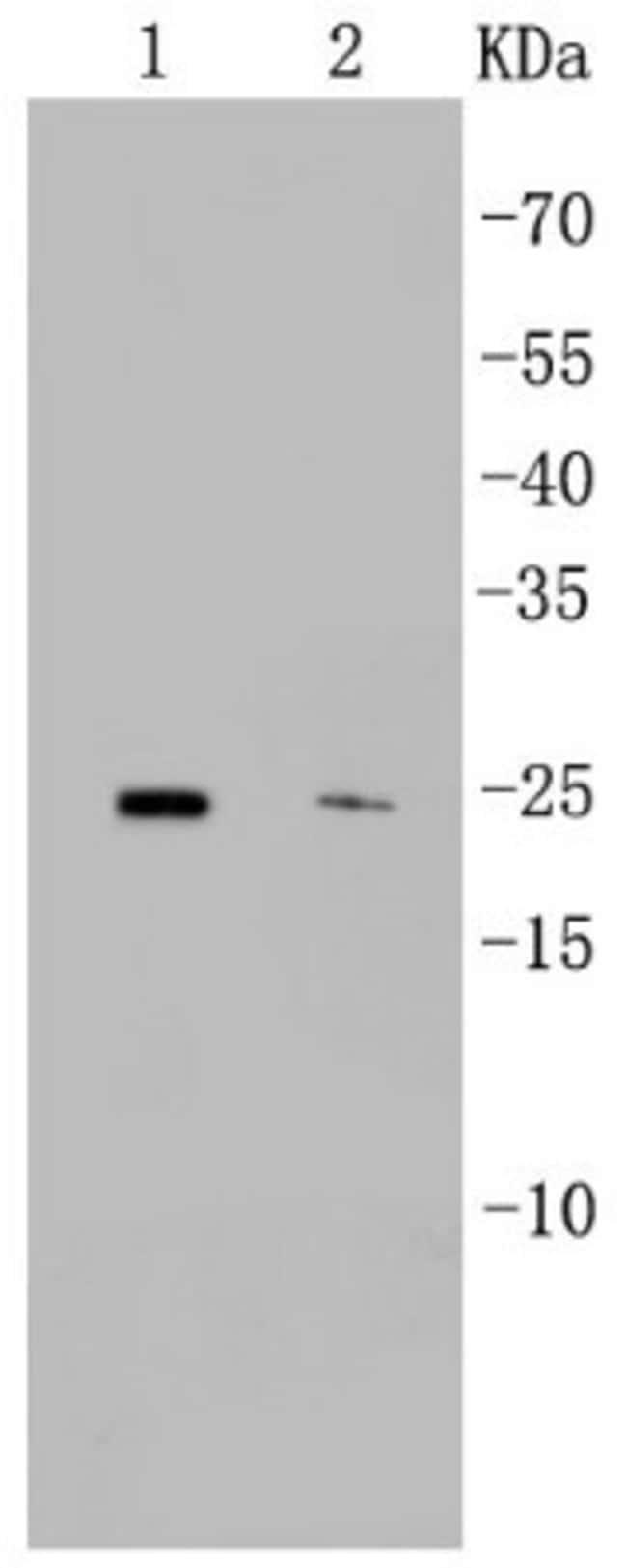 CD9 Rabbit anti-Human, Clone: SA35-08, Novus Biologicals 100µL