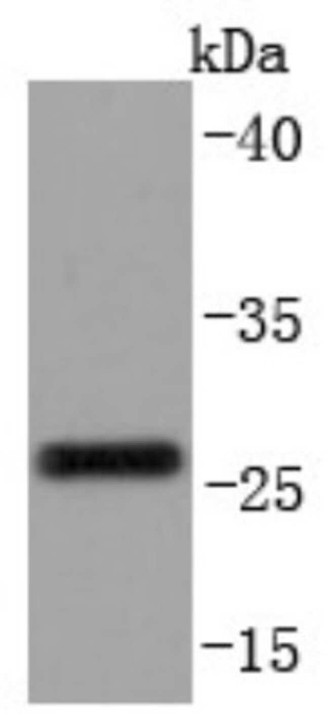 CD99 Rabbit anti-Human, Clone: JF0991, Novus Biologicals 100µL
