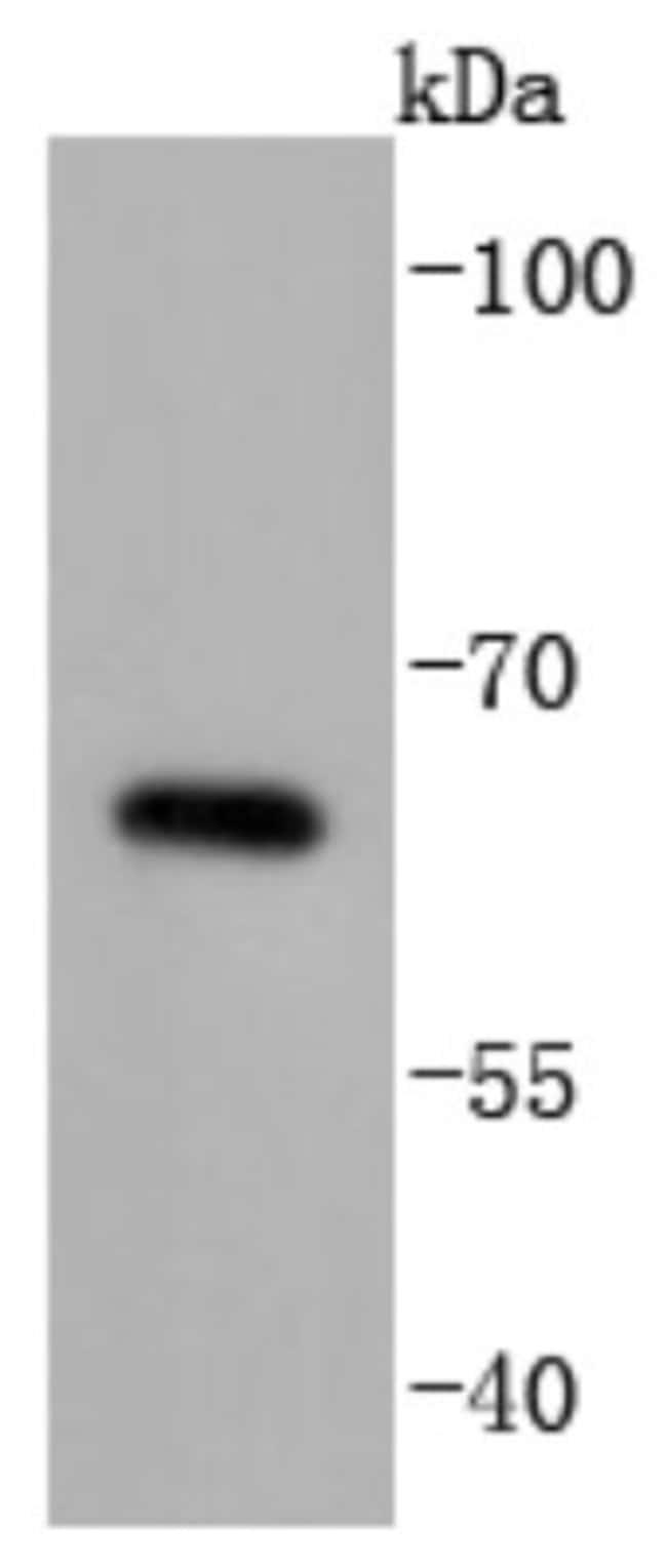 CDC25B Rabbit anti-Human, Clone: JJ091-2, Novus Biologicals 100µL
