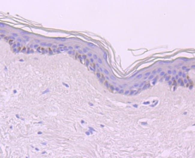 CDT1 Rabbit anti-Human, Clone: JA30-81, Novus Biologicals 100µL