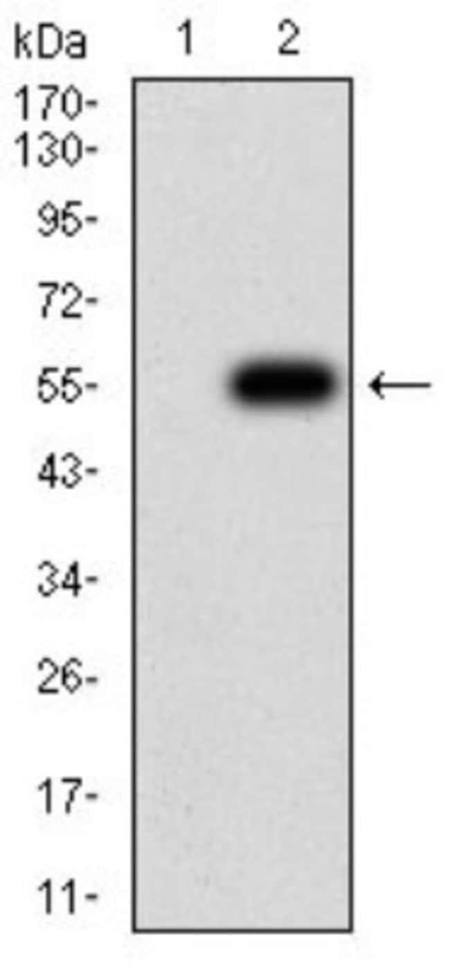 CHRND Mouse anti-Human, Clone: 1H1F9, Novus Biologicals 0.1 ml; Unconjugated