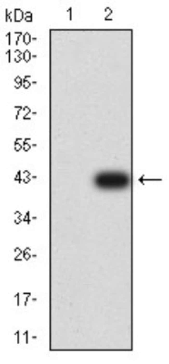 CXCR3 Mouse anti-Human, Clone: 5C10E6, Novus Biologicals 0.1 ml; Unconjugated