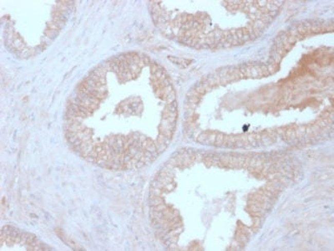 Calcineurin B Mouse anti-Human, Clone: CALNB/2342, Novus Biologicals:Antibodies:Primary