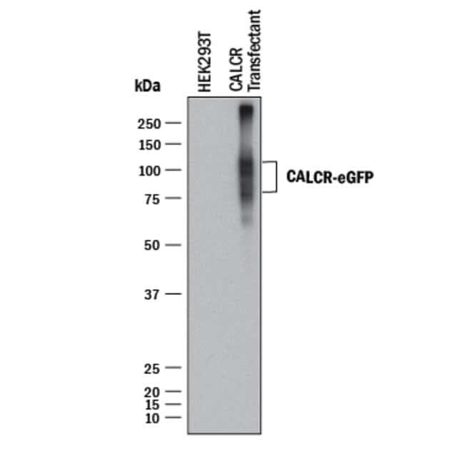 Calcitonin R, Mouse anti-Human, Clone: 462815, R:Antibodies:Primary Antibodies
