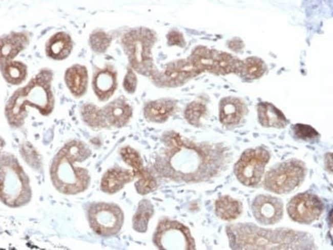 Calpain 1 Mouse anti-Human, Clone: CAPN1/1530, Novus Biologicals:Antibodies:Primary