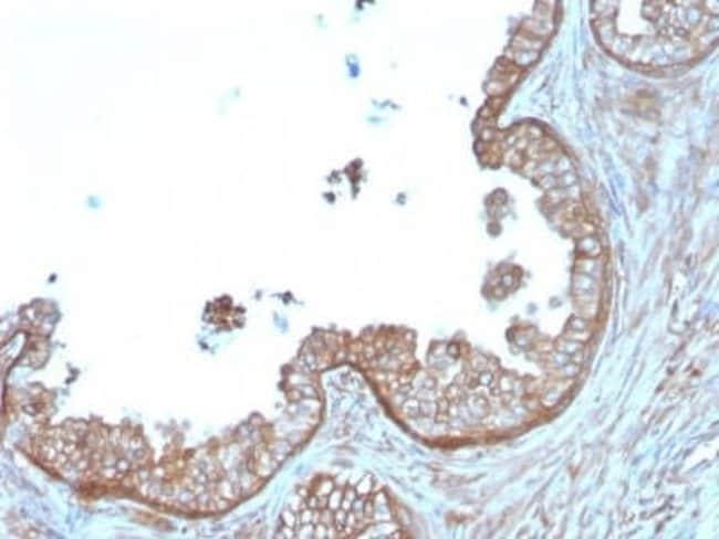 Calpastatin Mouse anti-Human, Clone: CAST/1550, Novus Biologicals:Antibodies:Primary