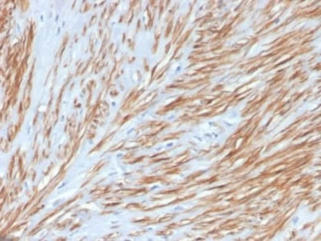 Calponin 1 Rabbit anti-Human, Clone: CNN1/4227R, Novus Biologicals:Antibodies:Primary