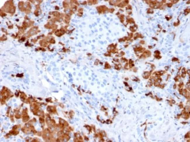 Carboxypeptidase A1/CPA1, Mouse anti-Human, Clone: CPA1/2712, Novus Biologicals:Antibodies:Primary