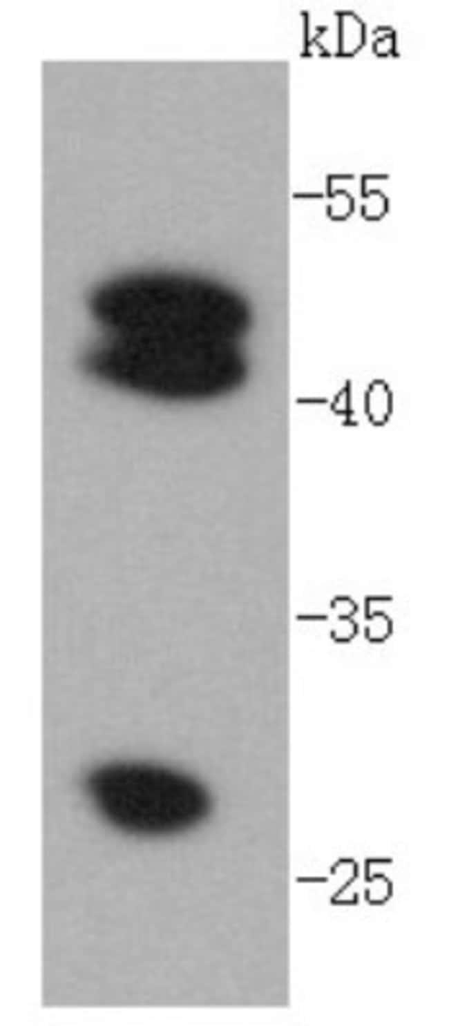 CathepsinD Rabbit anti-Human, Clone: SU0360, Novus Biologicals 100μL:Antibodies