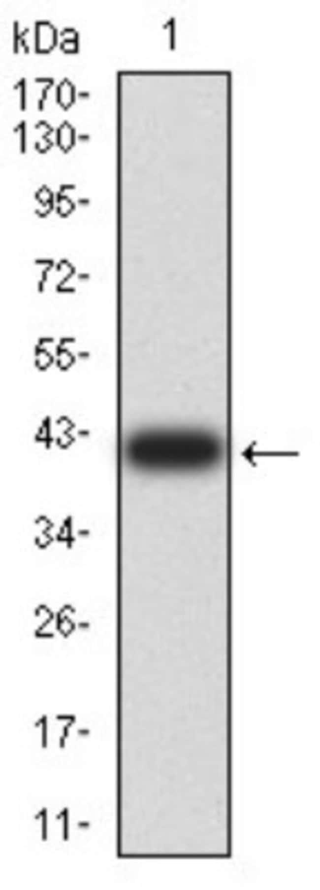 Chorionic Gonadotropin beta Chain (HCG beta) Mouse anti-Human, Clone: 4B8B3,