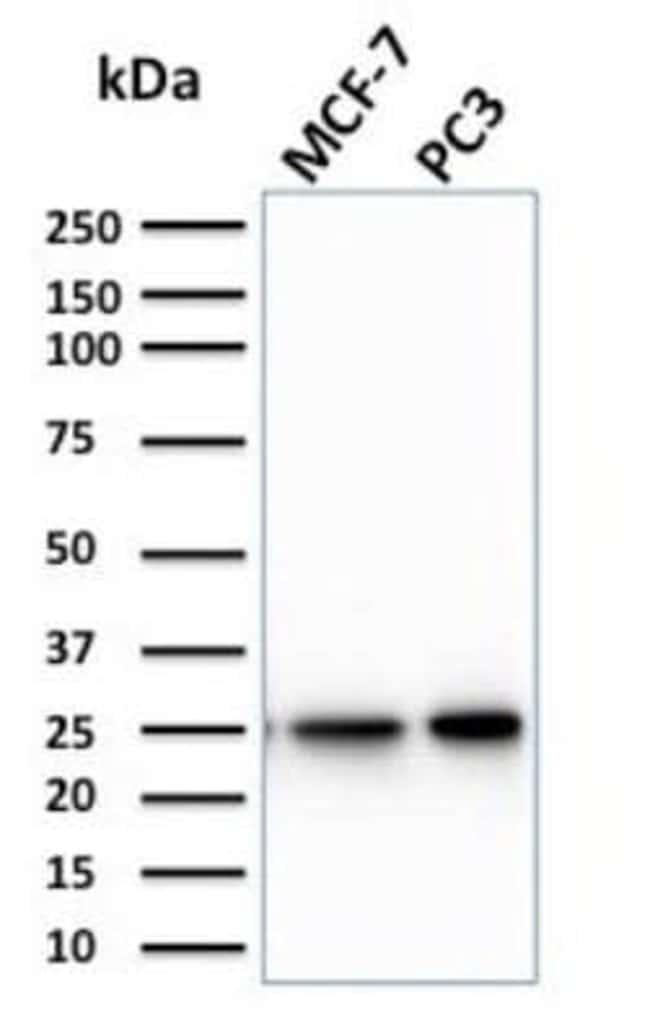 Chp2 Mouse anti-Human, Clone: CPTC-CHP2-1, Novus Biologicals:Antibodies:Primary