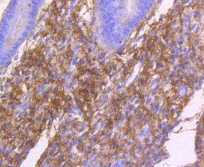 CollagenI/II/III/IV/V Rabbit anti-Bovine, Clone: ST58-04, Novus Biologicals
