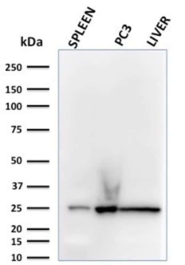 Complement Component C1qA, Mouse anti-Human, Clone: C1QA/2783, Novus Biologicals:Antibodies:Primary
