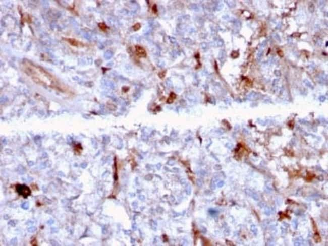 Complement Component C1qA Mouse anti-Human, Clone: C1QA/2956, Novus Biologicals:Antibodies:Primary