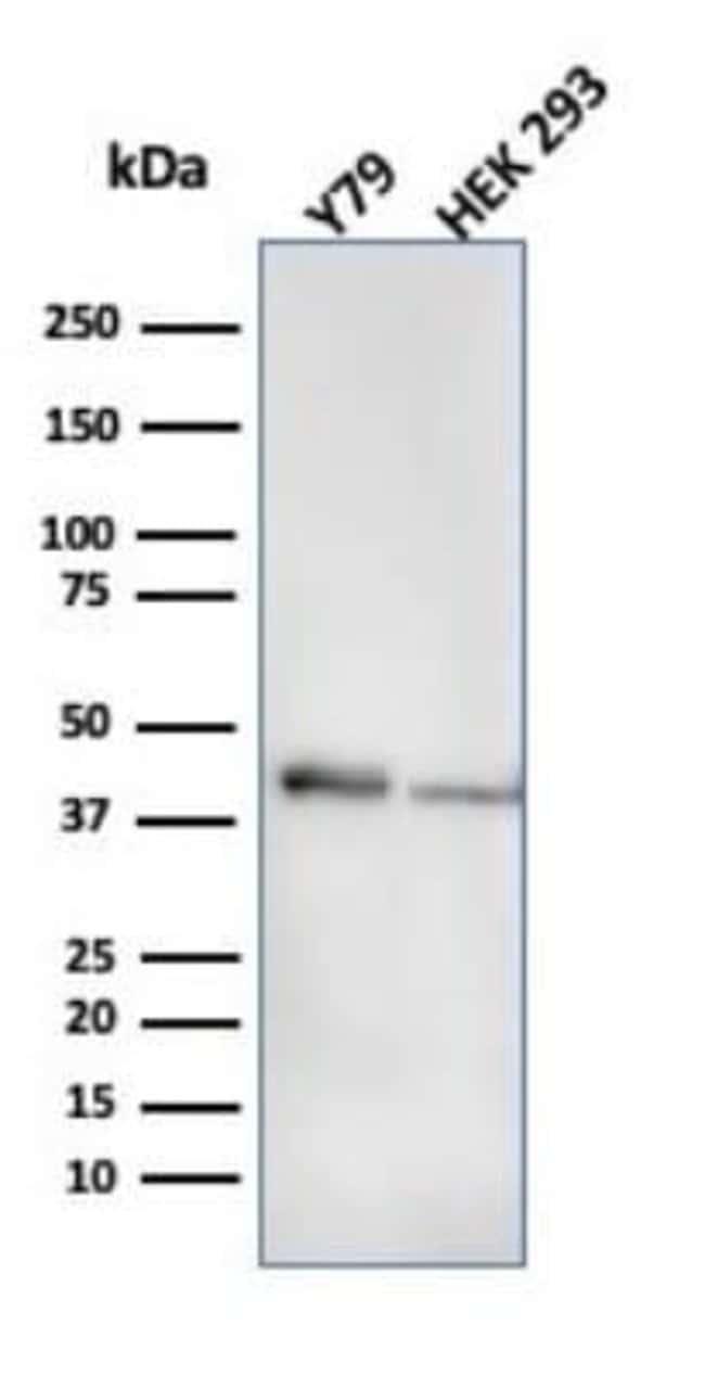 Creatine Kinase BB Mouse anti-Human, Clone: CPTC-CKB-2, Novus Biologicals:Antibodies:Primary