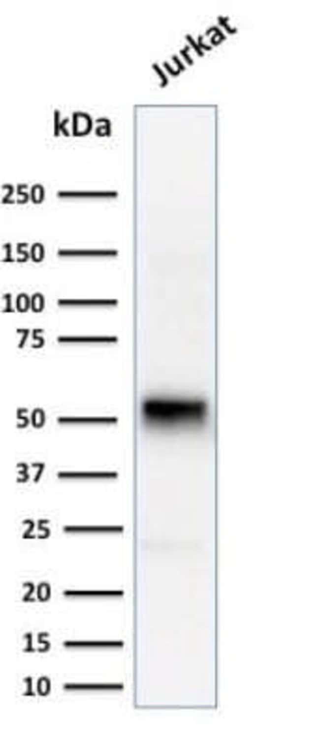 Cyclin E1 Mouse anti-Human, Clone: CCNE1/2460, Novus Biologicals:Antibodies:Primary