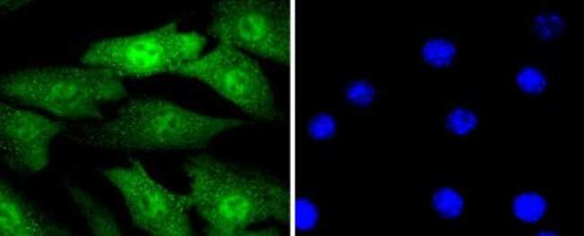 CyclinE2 Rabbit anti-Human, Clone: SD2035, Novus Biologicals 100µL