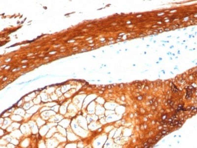 Cytokeratin, HMW Rabbit anti-Human, Clone: KRTH/4392R, Novus Biologicals:Antibodies:Primary