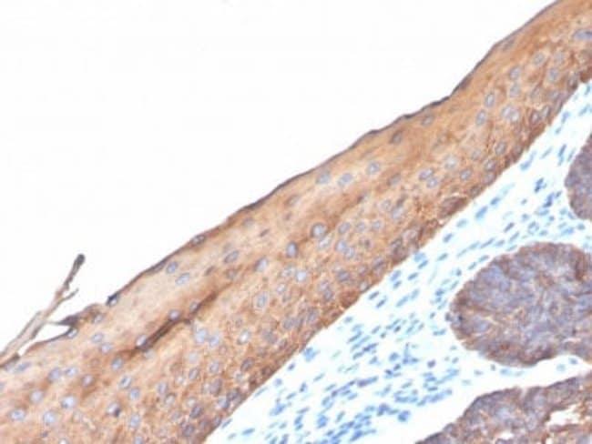 Cytokeratin, LMW Rabbit anti-Human, Clone: KRTL/4440R, Novus Biologicals:Antibodies:Primary