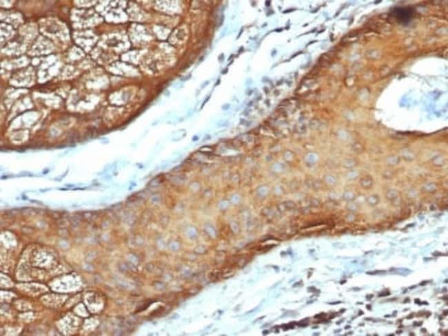 Cytokeratin, LMW Mouse anti-Human, Clone: rKRTL/6616, Novus Biologicals:Antibodies:Primary
