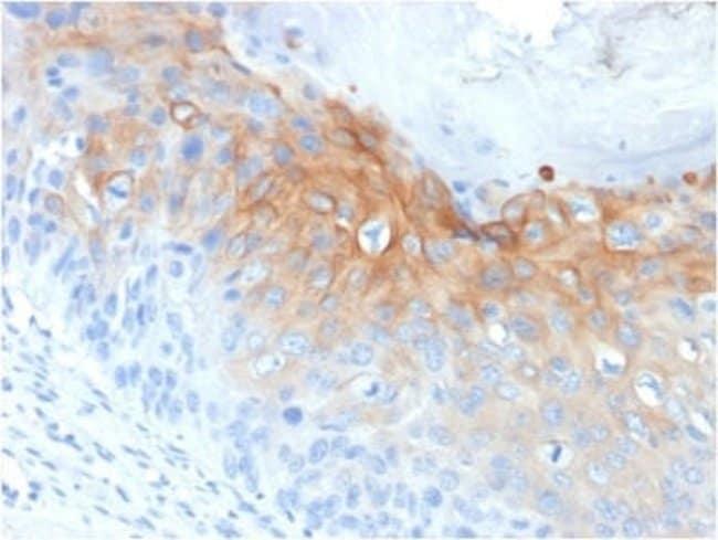 Cytokeratin 1 Mouse anti-Human, Rat, Clone: KRT1/1840, Novus Biologicals:Antibodies:Primary