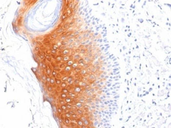 Cytokeratin 1 Mouse anti-Human, Rat, Clone: LHK1, Novus Biologicals:Antibodies:Primary