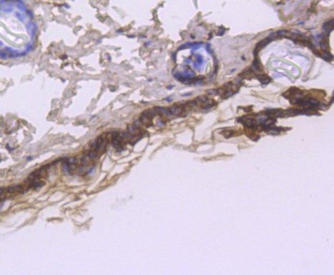 Cytokeratin1 Rabbit anti-Human, Clone: SN72-08, Novus Biologicals 100μL
