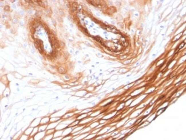 Cytokeratin 14 Mouse anti-Human, Mouse, Rat, Porcine, Clone: KRT14/2375,