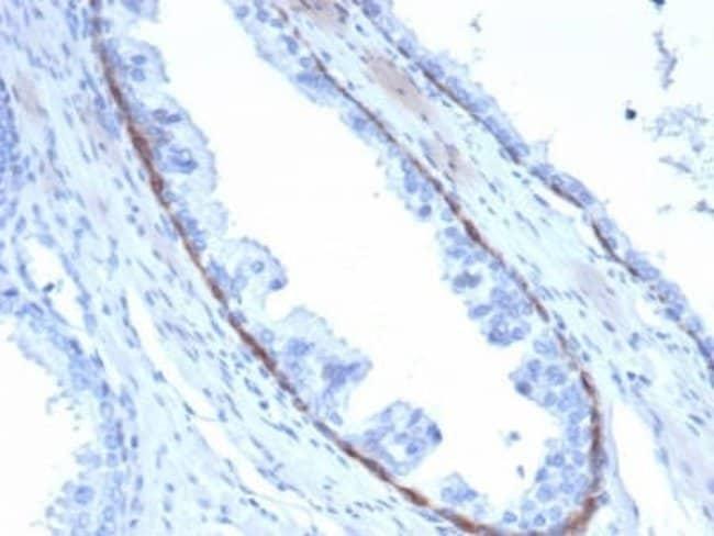 Cytokeratin 14 Mouse anti-Human, Clone: KRT14/4132, Novus Biologicals:Antibodies:Primary